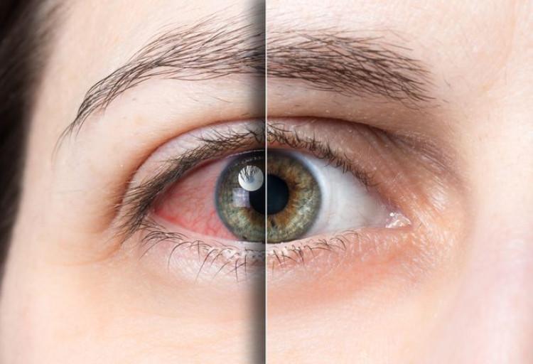 Синдром сухого глаза: причины, лечение, профилактика